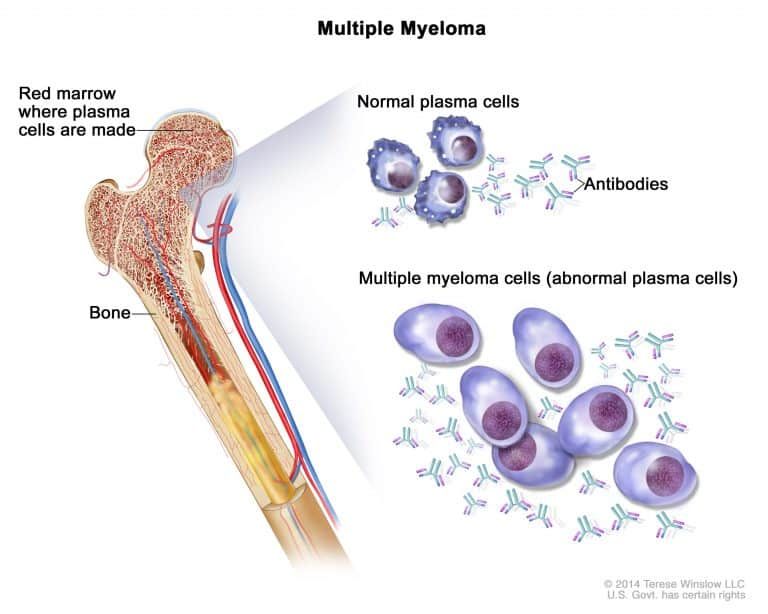 multiplemyeloma-enlarge.__v700346553-768x614